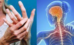 Η φυσικοθεραπεία στην αντιμετώπιση της σκλήρυνσης κατά πλάκας